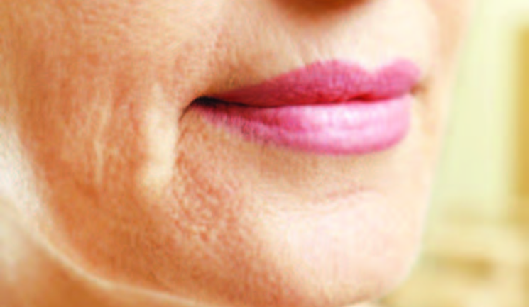 Treating the Perioral Area - Aesthetics