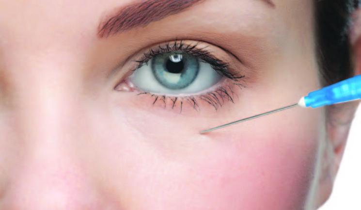Treating Permanent Dermal Filler Complications - Aesthetics