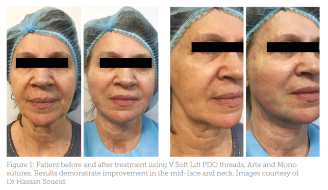 Special Feature: Mid-facial Thread Lifting - Aesthetics