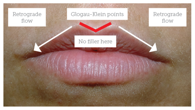 Lip Augmentation - Aesthetics