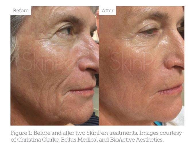 Special Feature: An Overview of Microneedling - Aesthetics