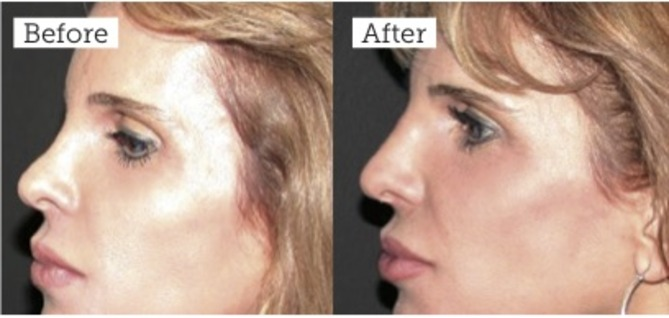 Non-Surgical Nose Reshaping - Aesthetics