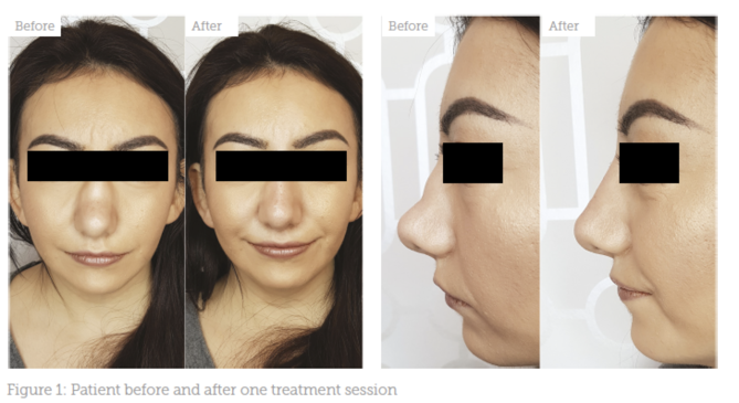Avatar Nose After Rhinoplasty