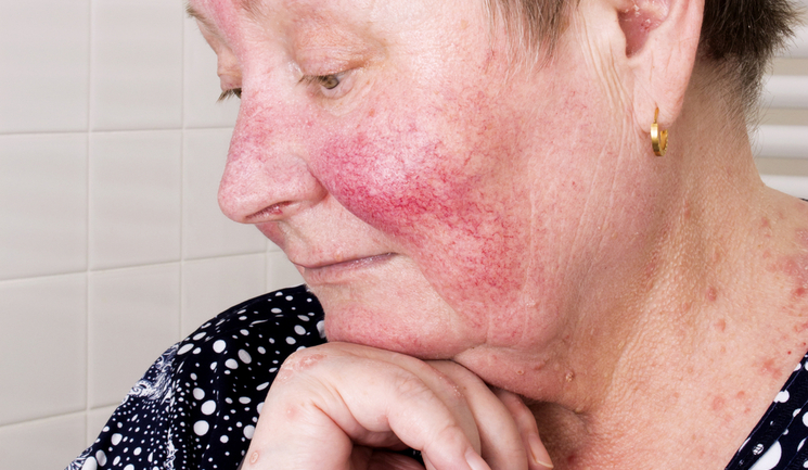 Rosacea and IPL - Aesthetics