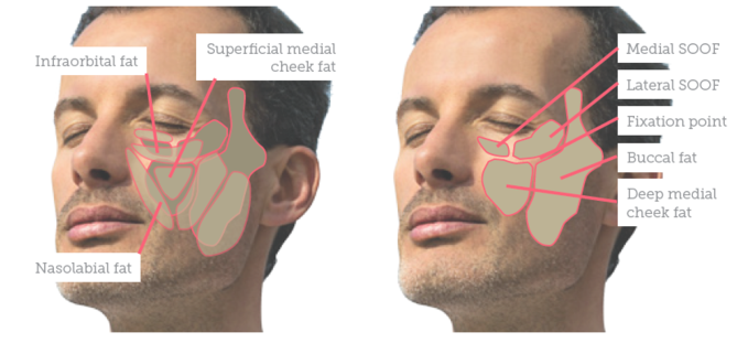 Treating the Male Mid-face - Aesthetics