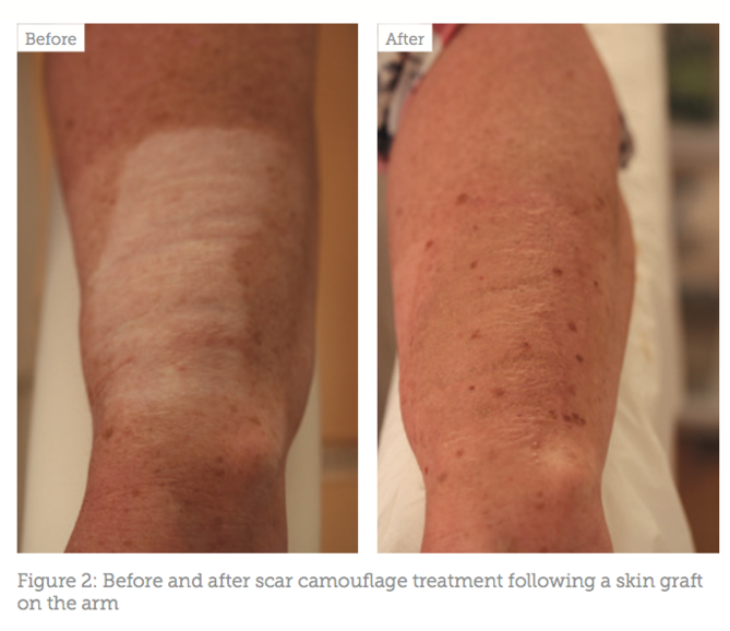 Case Study Concealing Scars , Aesthetics