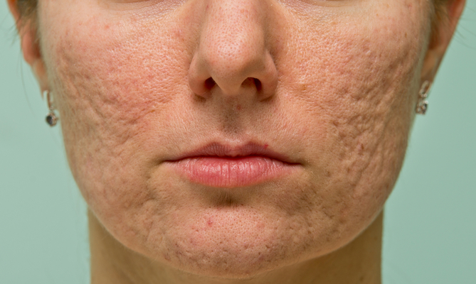 Treating Acne Scars With Lasers Aesthetics