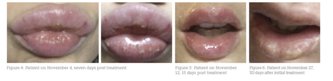Case Study: Lip Filler Complication - Aesthetics
