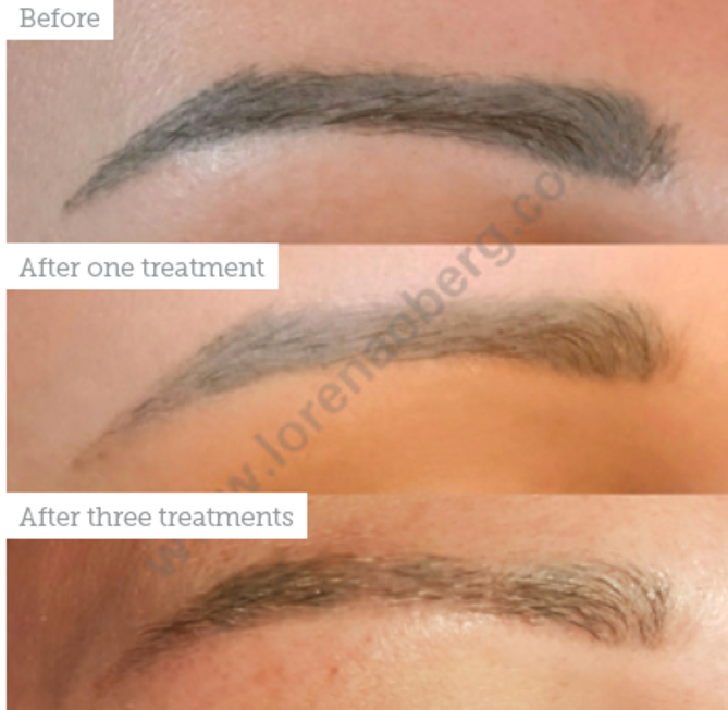 Permanent Makeup Removal Aesthetics