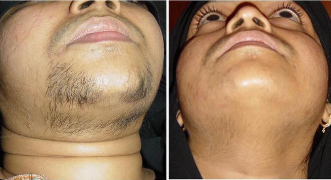 Spironolactone facial hair