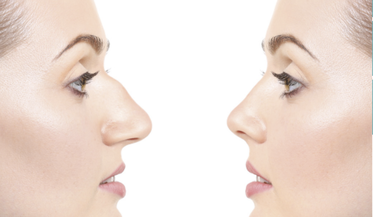 Rhinoplasty: all you Need to Know