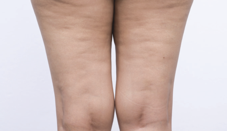 Improving The Appearance Of Cellulite Aesthetics