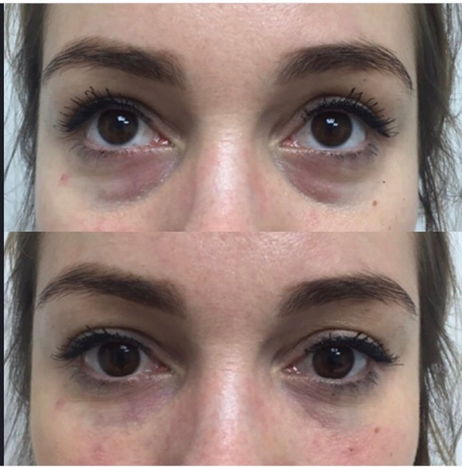 Figure 1  Before and after treatment with HA filler in ... 69e55364ea