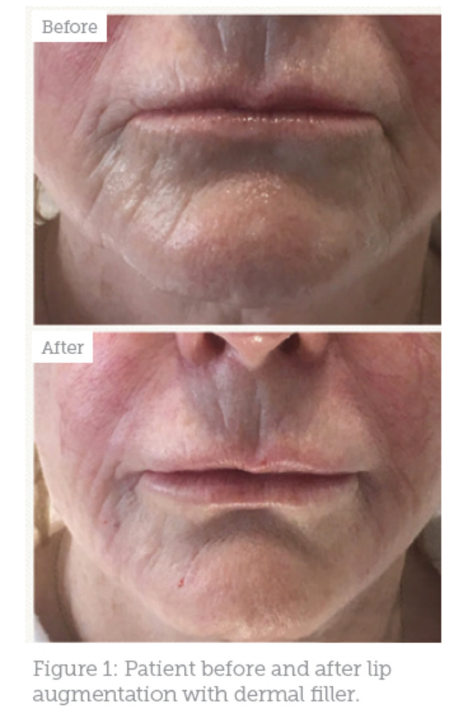 Case Study: Treating Ageing Lips - Aesthetics