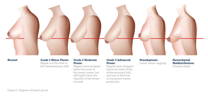 on Lower breast torso augmentation longer